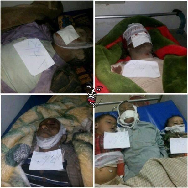 22 #Yemenis killed on Friday by #Saudi Airstrikes. 14 of the killed were children. #Yemen #YemenUnderAttack #KefayaWar. Source Yemen Real News