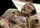 سعودی عرب یمن کے ساحلوں کی ناکہ بندی کیوں کررہا ہے ؟ – مستجاب حیدر